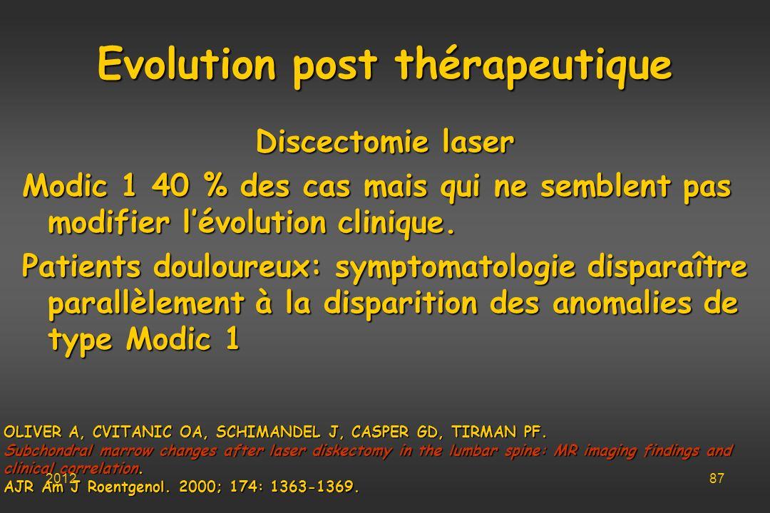 Evolution post thérapeutique Discectomie laser Modic 1 40 % des cas mais qui ne semblent pas modifier lévolution clinique. Patients douloureux: sympto