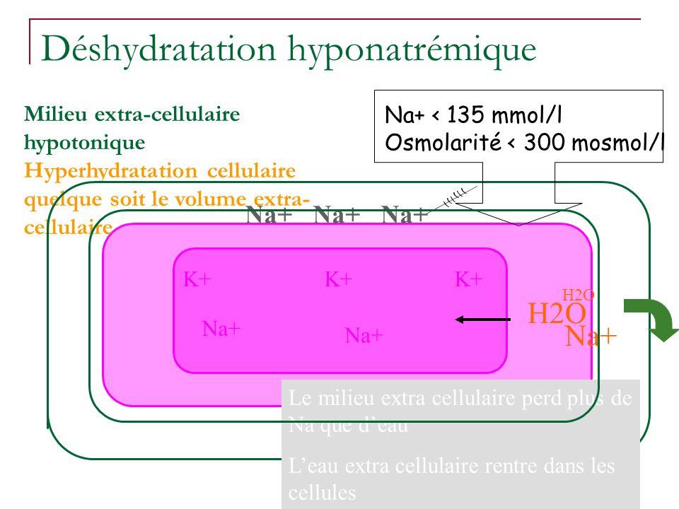 9 Déshydratation hyponatrémique Milieu extra-cellulaire hypotonique Hyperhydratation cellulaire quelque soit le volume extra- cellulaire Na+ < 135 mmol/l Osmolarité < 300 mosmol/l H2O Na+Na+Na+ K+ K+K+ Na+ Le milieu extra cellulaire perd plus de Na que deau Leau extra cellulaire rentre dans les cellules H2O Na+