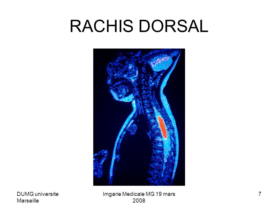 DUMG universite Marseille Imgarie Medicale MG 19 mars 2008 7 RACHIS DORSAL
