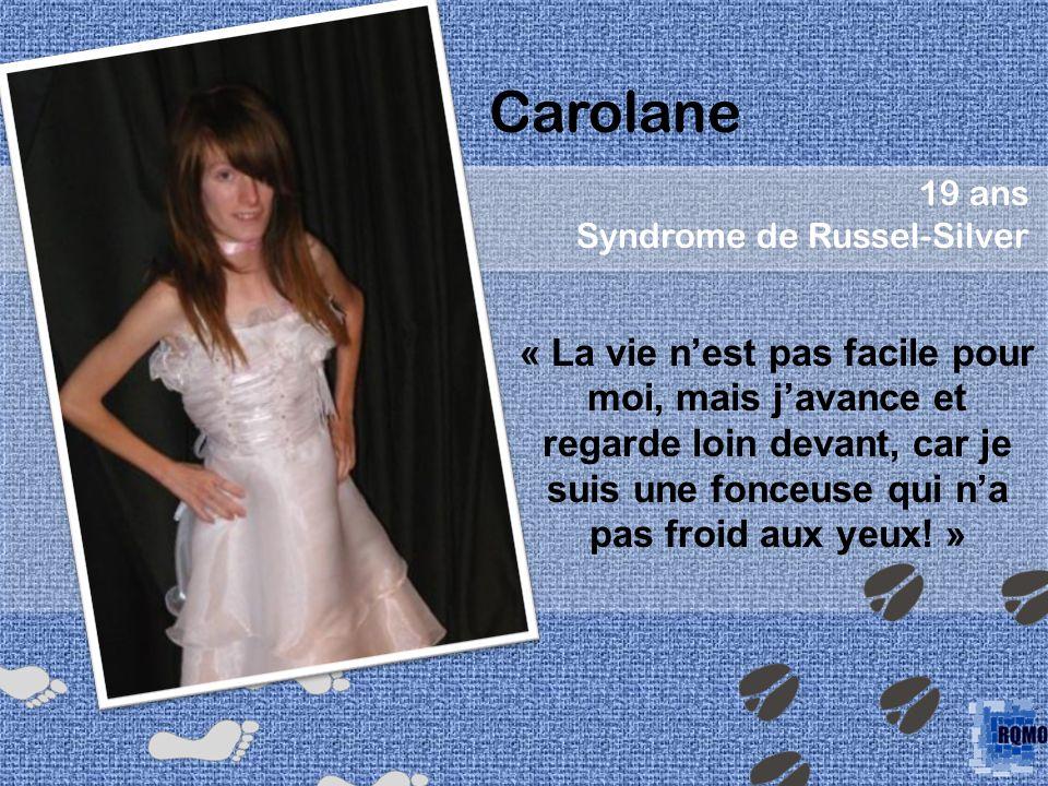 Carolane 19 ans Syndrome de Russel-Silver « La vie nest pas facile pour moi, mais javance et regarde loin devant, car je suis une fonceuse qui na pas froid aux yeux.