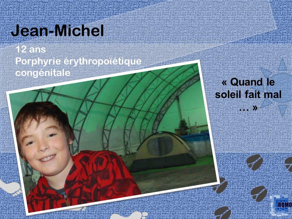12 ans Porphyrie érythropoïétique congénitale Jean-Michel « Quand le soleil fait mal … »