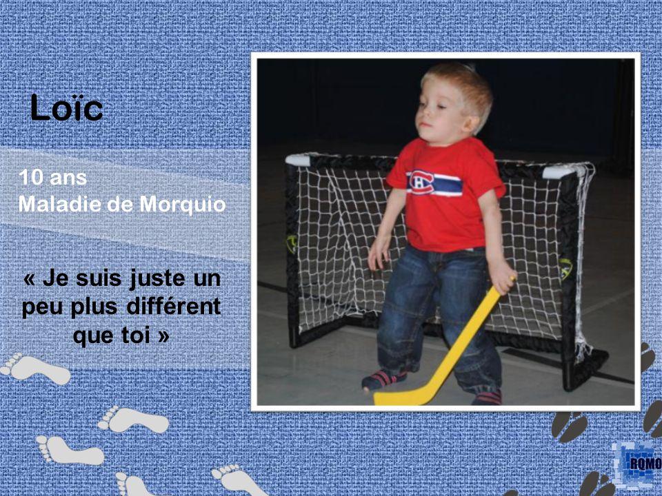 Loïc 10 ans Maladie de Morquio « Je suis juste un peu plus différent que toi »