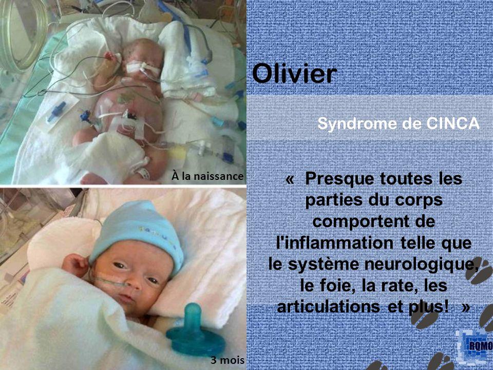 Olivier Syndrome de CINCA « Presque toutes les parties du corps comportent de l inflammation telle que le système neurologique, le foie, la rate, les articulations et plus.