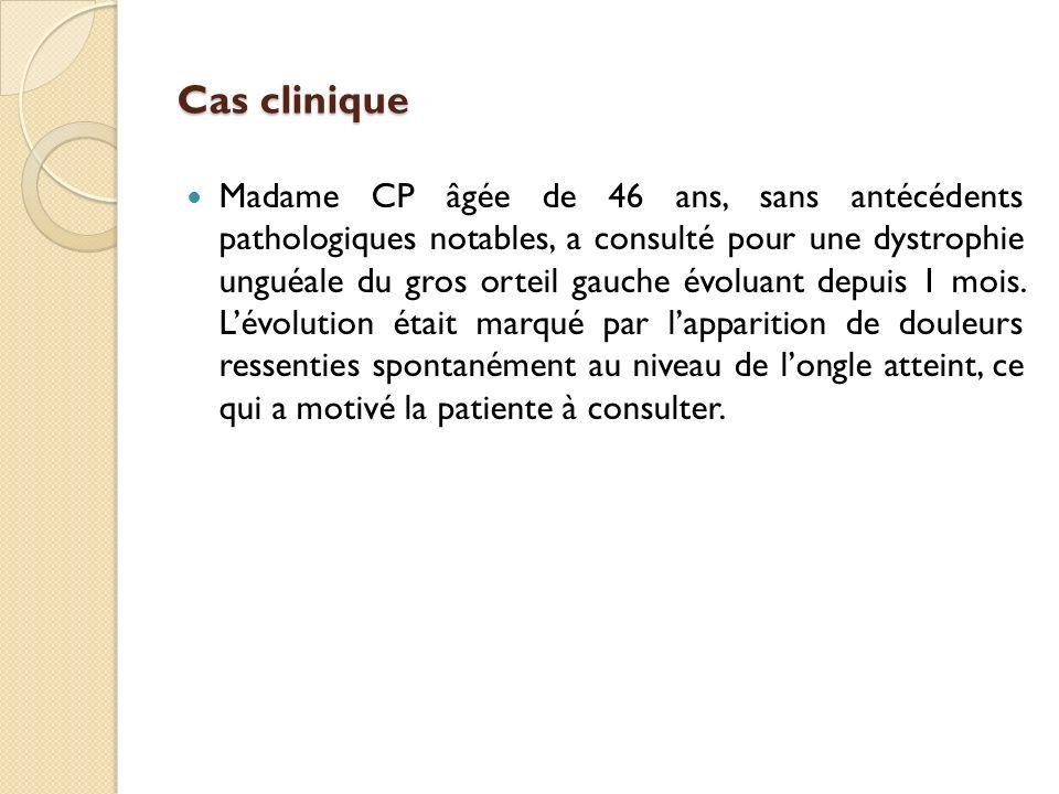 Cas clinique Madame CP âgée de 46 ans, sans antécédents pathologiques notables, a consulté pour une dystrophie unguéale du gros orteil gauche évoluant