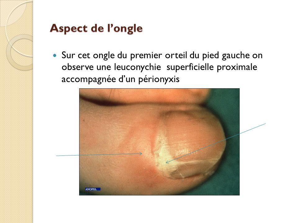 Aspect de longle Sur cet ongle du premier orteil du pied gauche on observe une leuconychie superficielle proximale accompagnée dun périonyxis