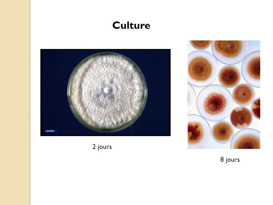 Aspect macroscopique Colonie duveteuse floconneuse de couleur blanche au départ puis devenant rosées à pourpres