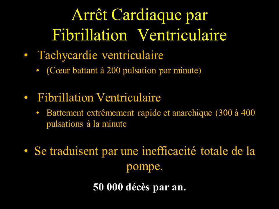 Arrêt Cardiaque par Fibrillation Ventriculaire Tachycardie ventriculaire (Cœur battant à 200 pulsation par minute) Fibrillation Ventriculaire Battemen