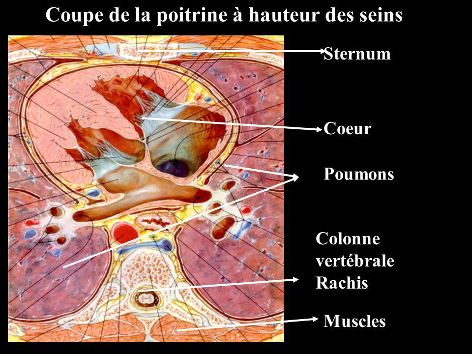 Coupe de la poitrine à hauteur des seins Sternum Muscles Poumons Coeur Colonne vertébrale Rachis