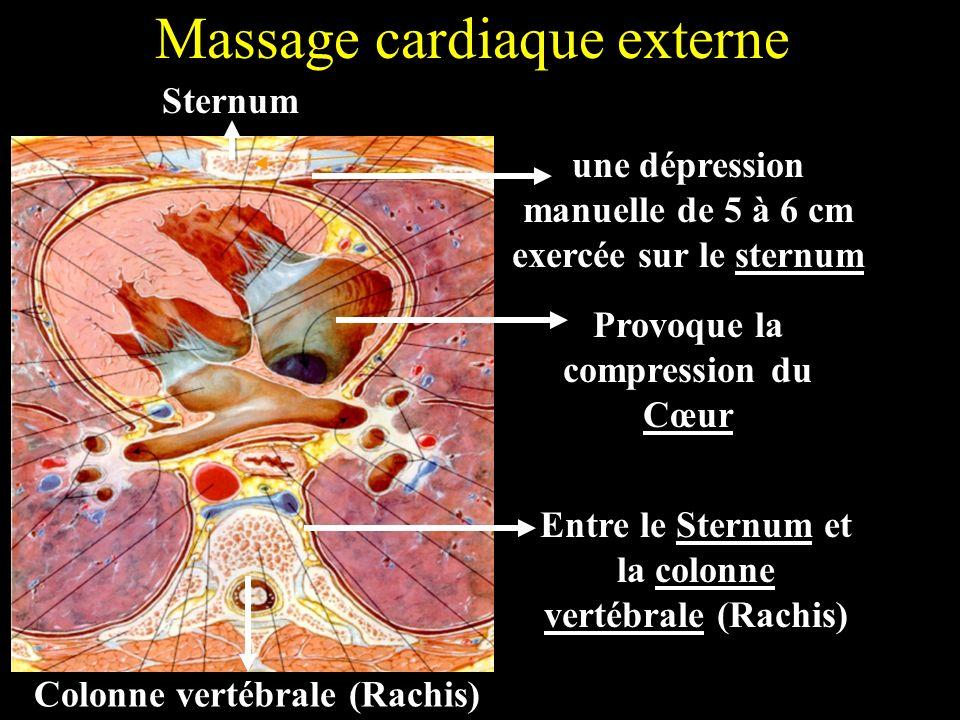 Massage cardiaque externe Sternum Colonne vertébrale (Rachis) une dépression manuelle de 5 à 6 cm exercée sur le sternum Provoque la compression du Cœ