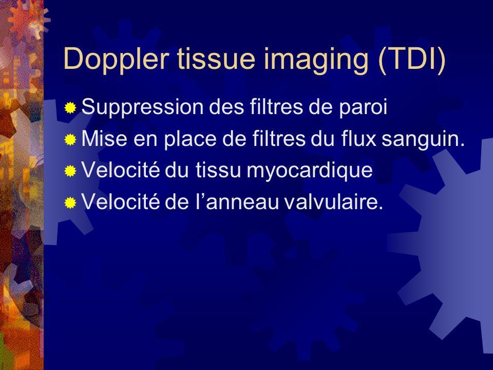 Doppler tissue imaging (TDI) Suppression des filtres de paroi Mise en place de filtres du flux sanguin. Velocité du tissu myocardique Velocité de lann