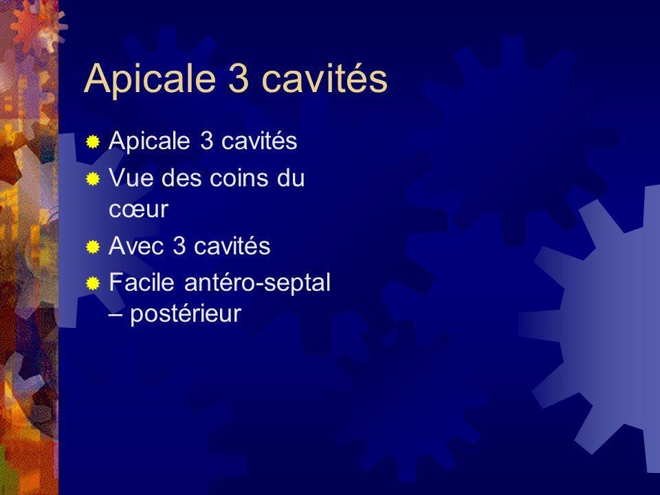 Apicale 3 cavités Vue des coins du cœur Avec 3 cavités Facile antéro-septal – postérieur