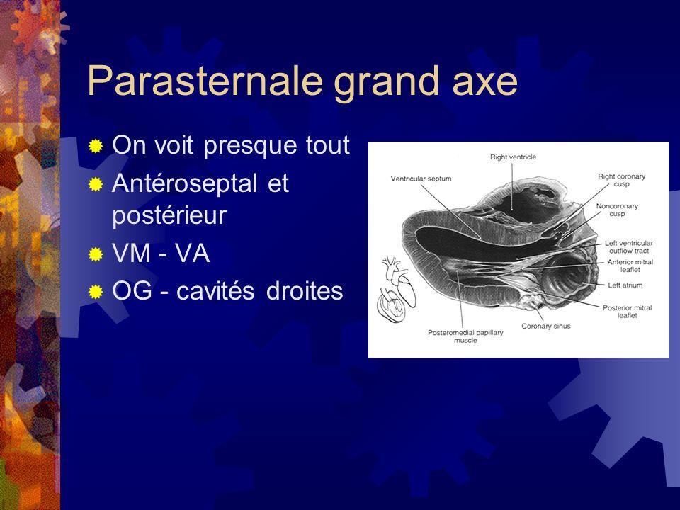 Parasternale grand axe On voit presque tout Antéroseptal et postérieur VM - VA OG - cavités droites