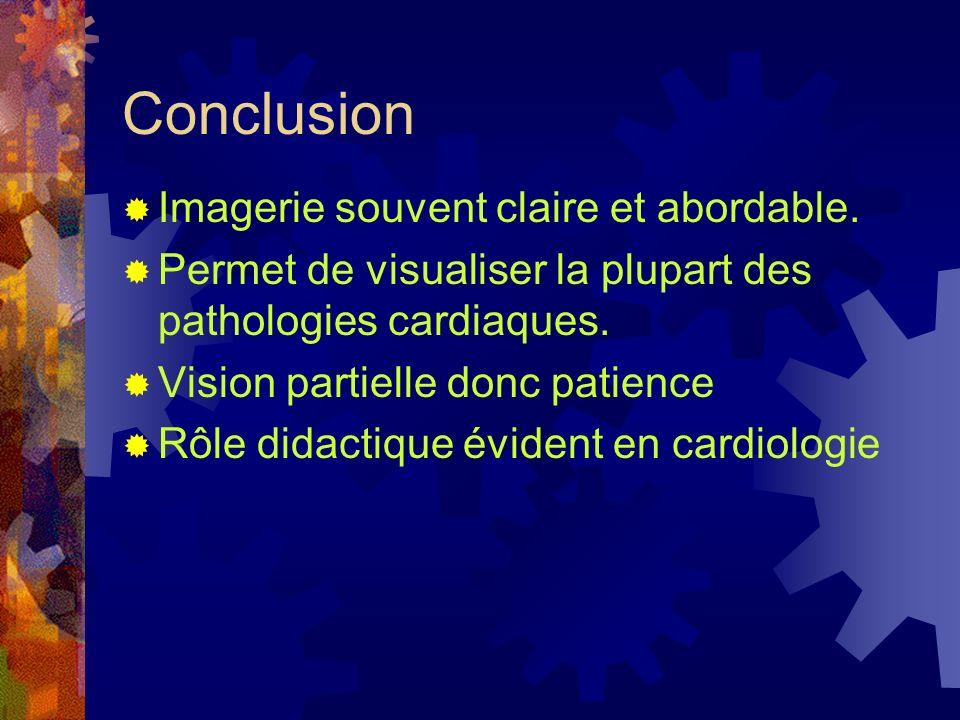 Conclusion Imagerie souvent claire et abordable. Permet de visualiser la plupart des pathologies cardiaques. Vision partielle donc patience Rôle didac