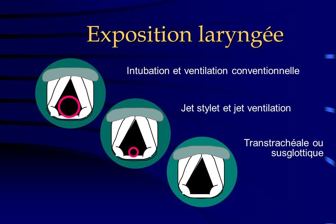 Intubation et ventilation conventionnelle Jet stylet et jet ventilation Transtrachéale ou susglottique Exposition laryngée