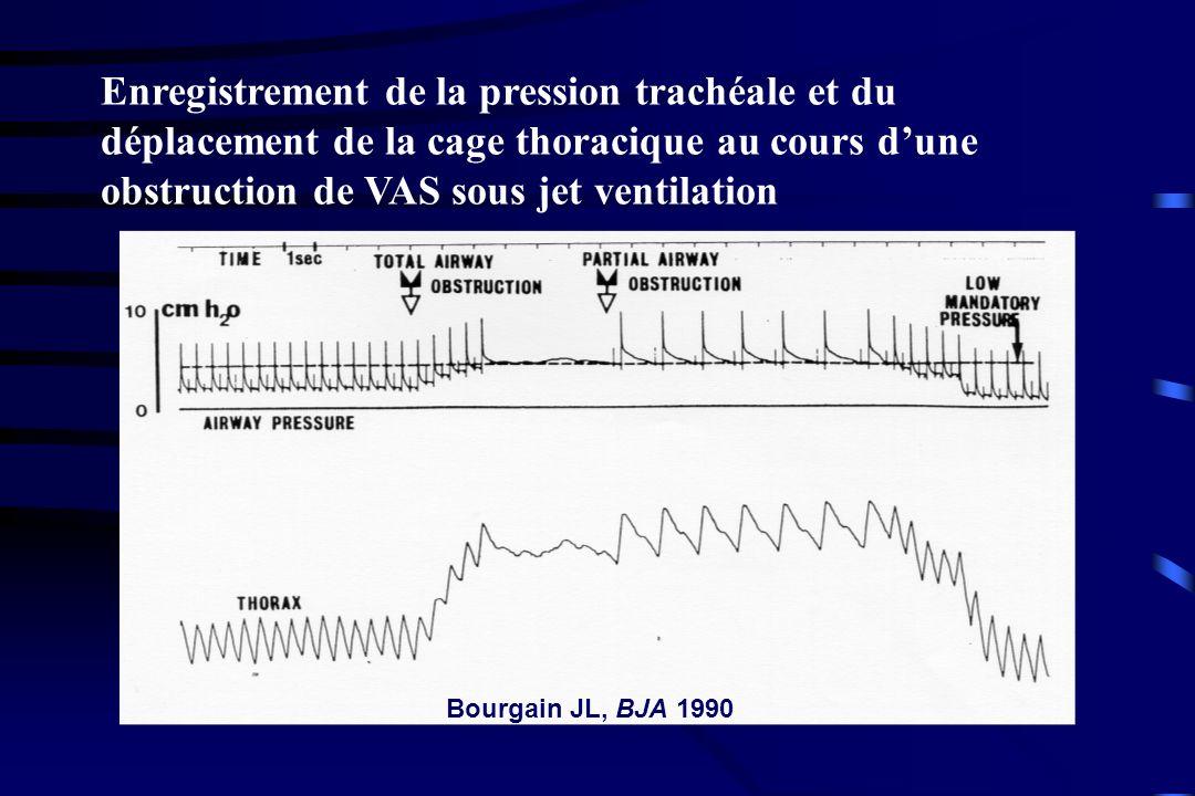 Enregistrement de la pression trachéale et du déplacement de la cage thoracique au cours dune obstruction de VAS sous jet ventilation Bourgain JL, BJA
