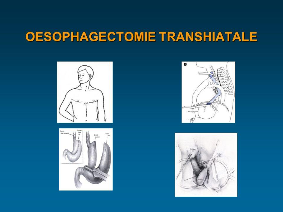 OESOPHAGECTOMIE TRANSHIATALE