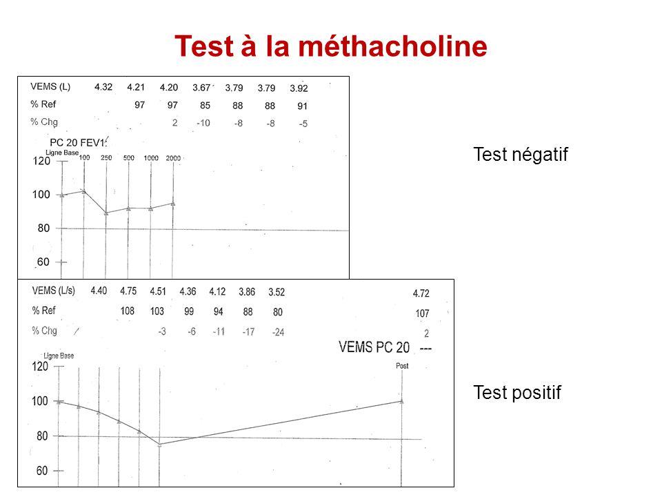 Test à la méthacholine Test négatif Test positif