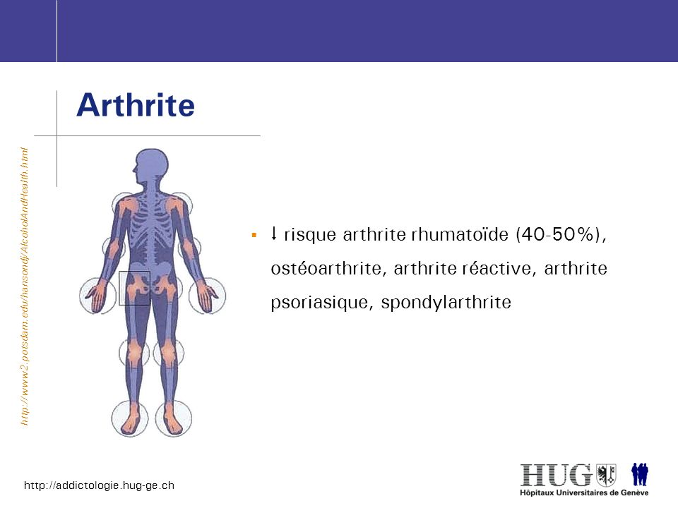 http://addictologie.hug-ge.ch Arthrite risque arthrite rhumatoïde (40-50%), ostéoarthrite, arthrite réactive, arthrite psoriasique, spondylarthrite ht