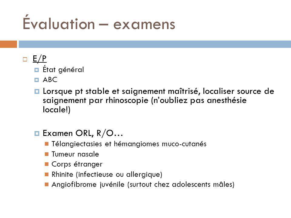 Évaluation – examens E/P État général ABC Lorsque pt stable et saignement maîtrisé, localiser source de saignement par rhinoscopie (noubliez pas anest