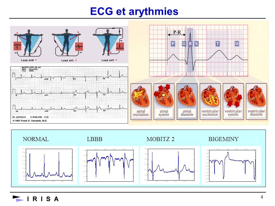 4 NORMALLBBBMOBITZ 2BIGEMINY P-R ECG et arythmies