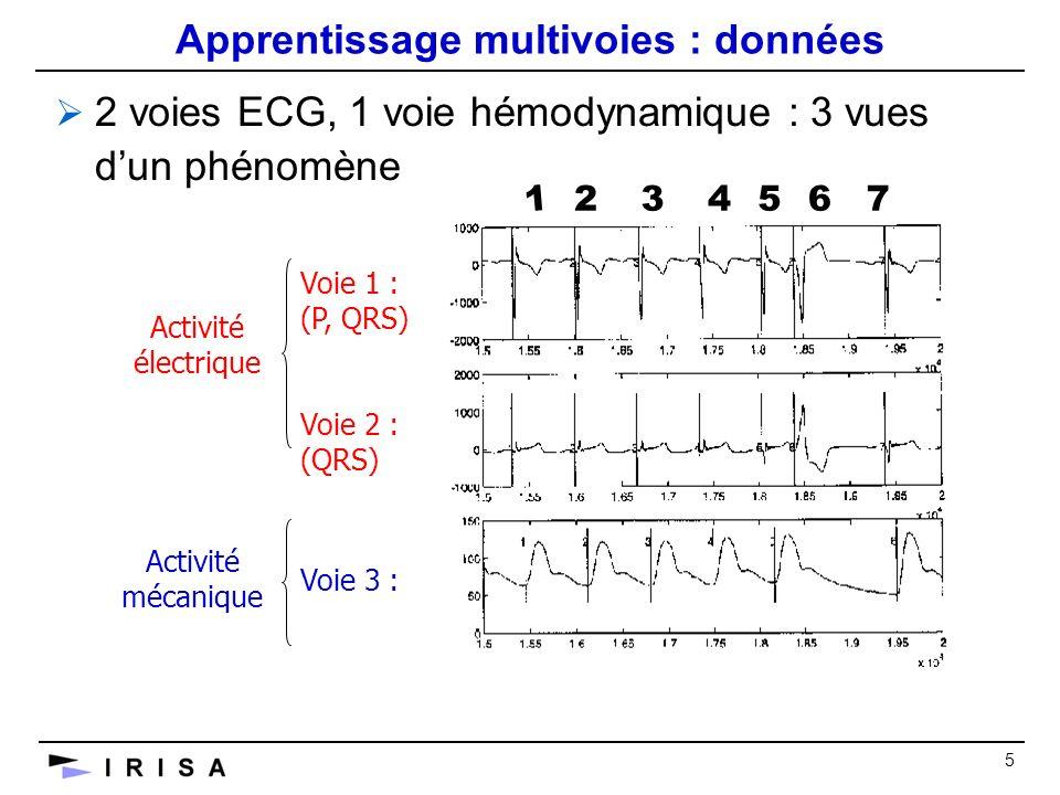 5 Apprentissage multivoies : données 2 voies ECG, 1 voie hémodynamique : 3 vues dun phénomène Voie 1 : (P, QRS) Voie 2 : (QRS) Voie 3 : Activité électrique Activité mécanique 1 234567