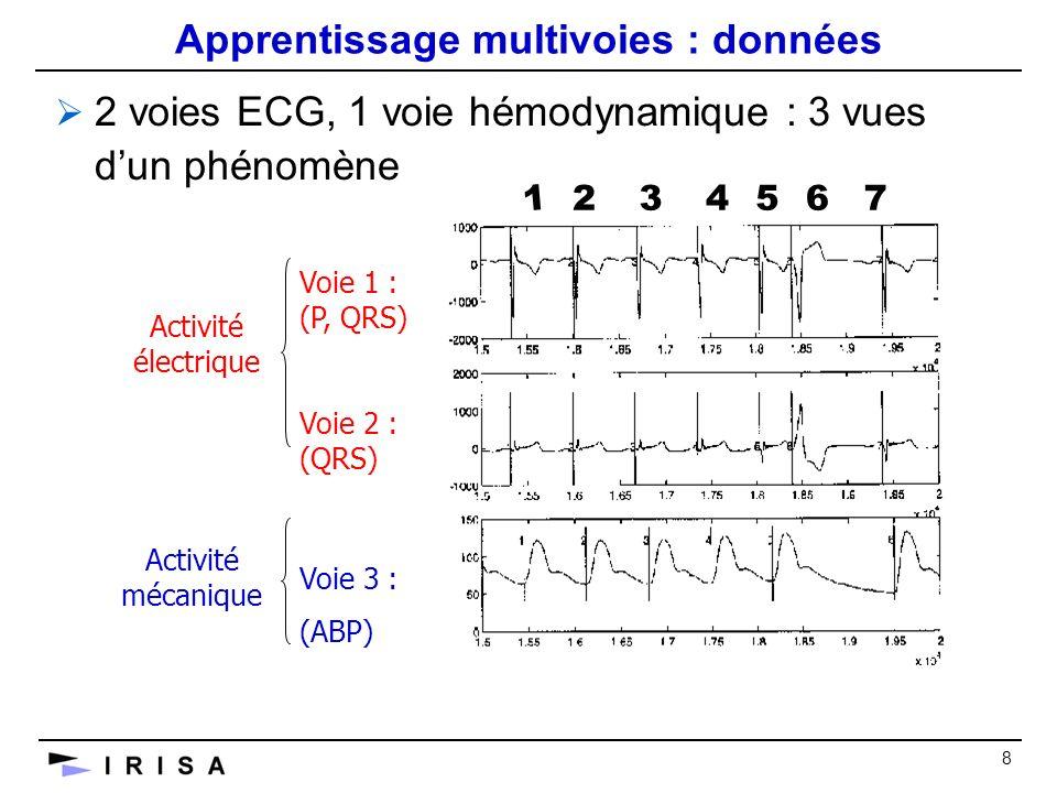 8 Apprentissage multivoies : données 2 voies ECG, 1 voie hémodynamique : 3 vues dun phénomène Voie 1 : (P, QRS) Voie 2 : (QRS) Voie 3 : (ABP) Activité électrique Activité mécanique 1 234567