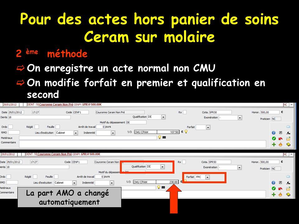 Pour des actes hors panier de soins Ceram sur molaire 2 ème méthode On enregistre un acte normal non CMU On modifie forfait en premier et qualificatio