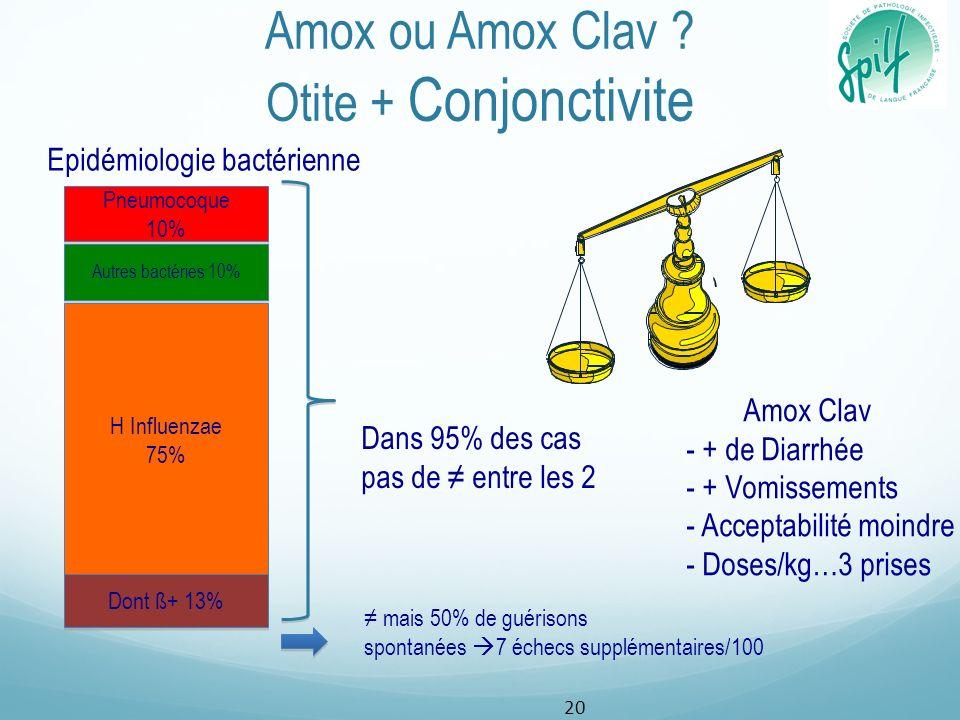 Amox ou Amox Clav ? Otite + Conjonctivite Pneumocoque 10% Pneumocoque 10% H Influenzae 75% H Influenzae 75% Autres bactéries 10% Dont ß+ 13% Dans 95%