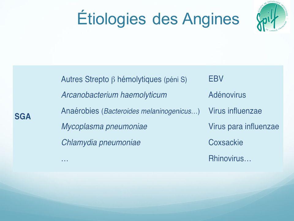 Étiologies des Angines