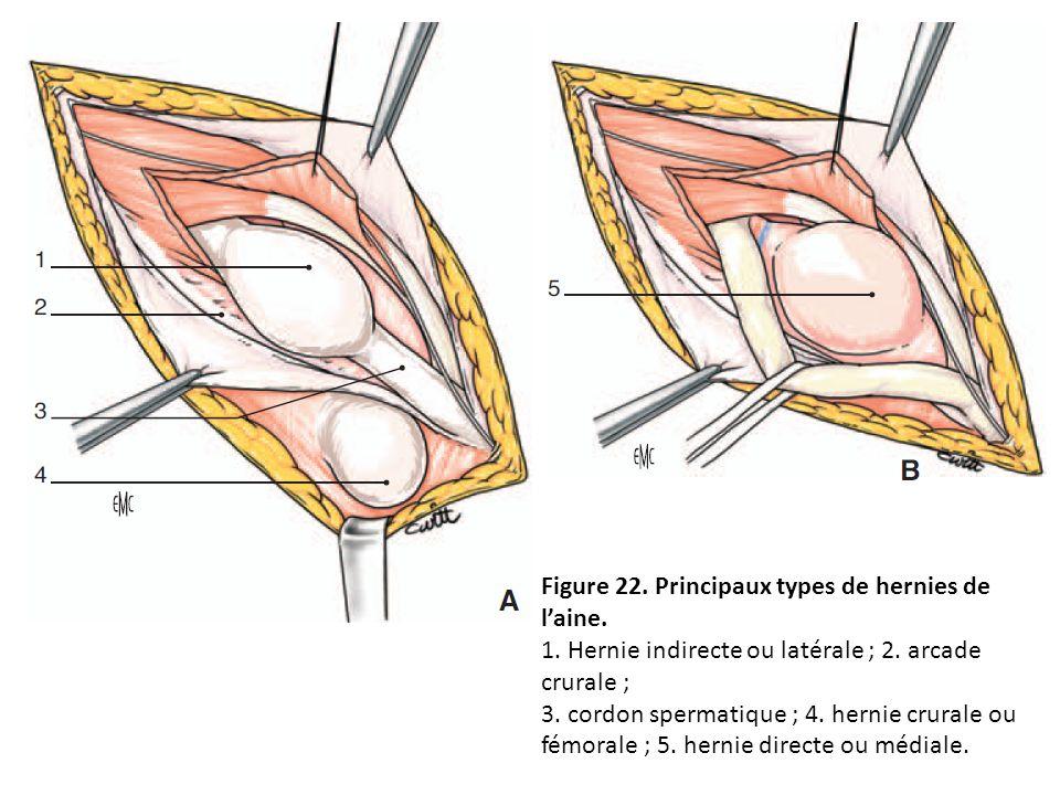 Figure 22. Principaux types de hernies de laine. 1. Hernie indirecte ou latérale ; 2. arcade crurale ; 3. cordon spermatique ; 4. hernie crurale ou fé