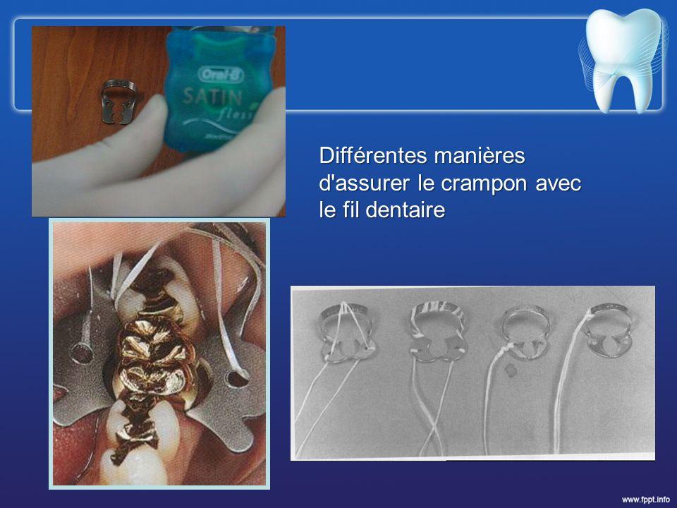 Différentes manières d'assurer le crampon avec le fil dentaire