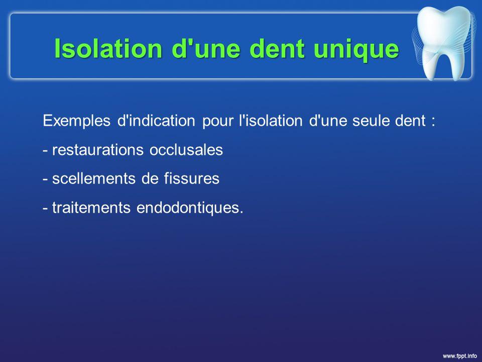 Exemples d'indication pour l'isolation d'une seule dent : - restaurations occlusales - scellements de fissures - traitements endodontiques. Isolation