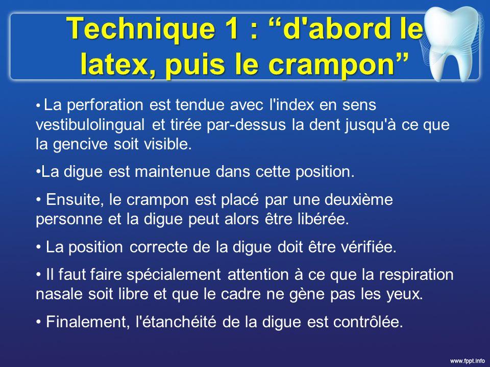 Technique 1 : d'abord le latex, puis le crampon La perforation est tendue avec l'index en sens vestibulolingual et tirée par-dessus la dent jusqu'à ce