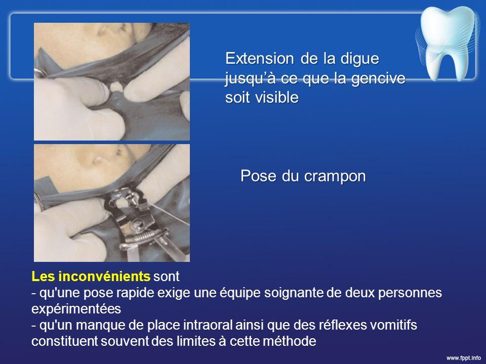 Extension de la digue jusquà ce que la gencive soit visible Pose du crampon Les inconvénients sont - qu'une pose rapide exige une équipe soignante de