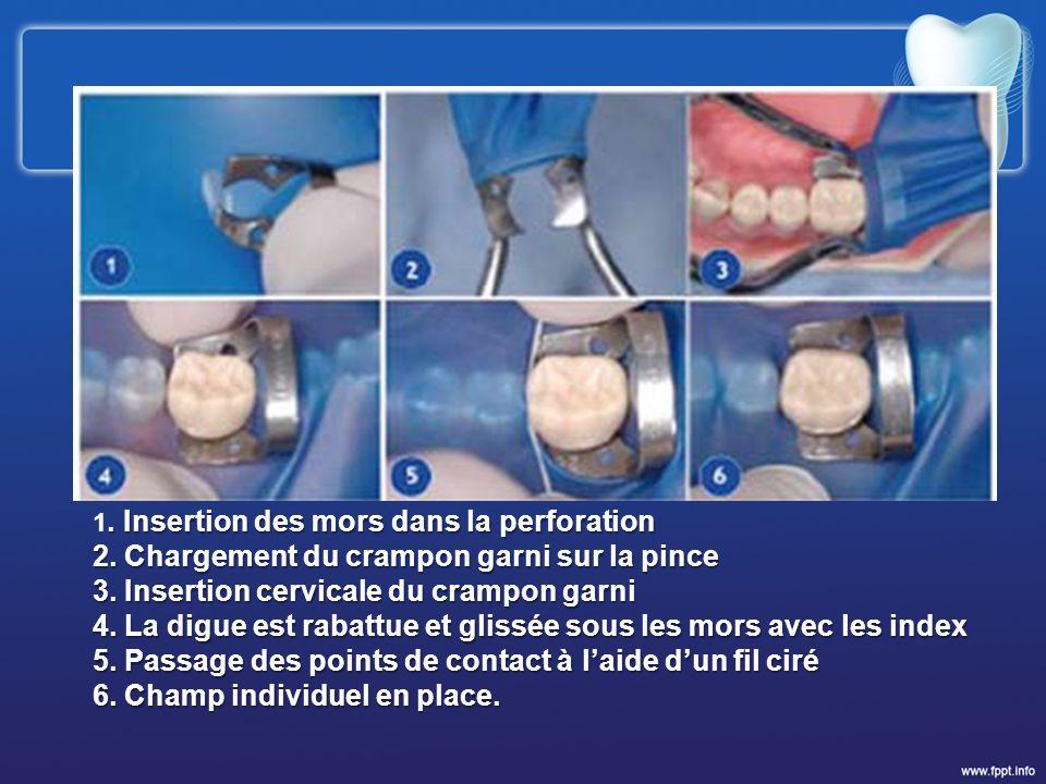 . Insertion des mors dans la perforation 1. Insertion des mors dans la perforation 2. Chargement du crampon garni sur la pince 3. Insertion cervicale