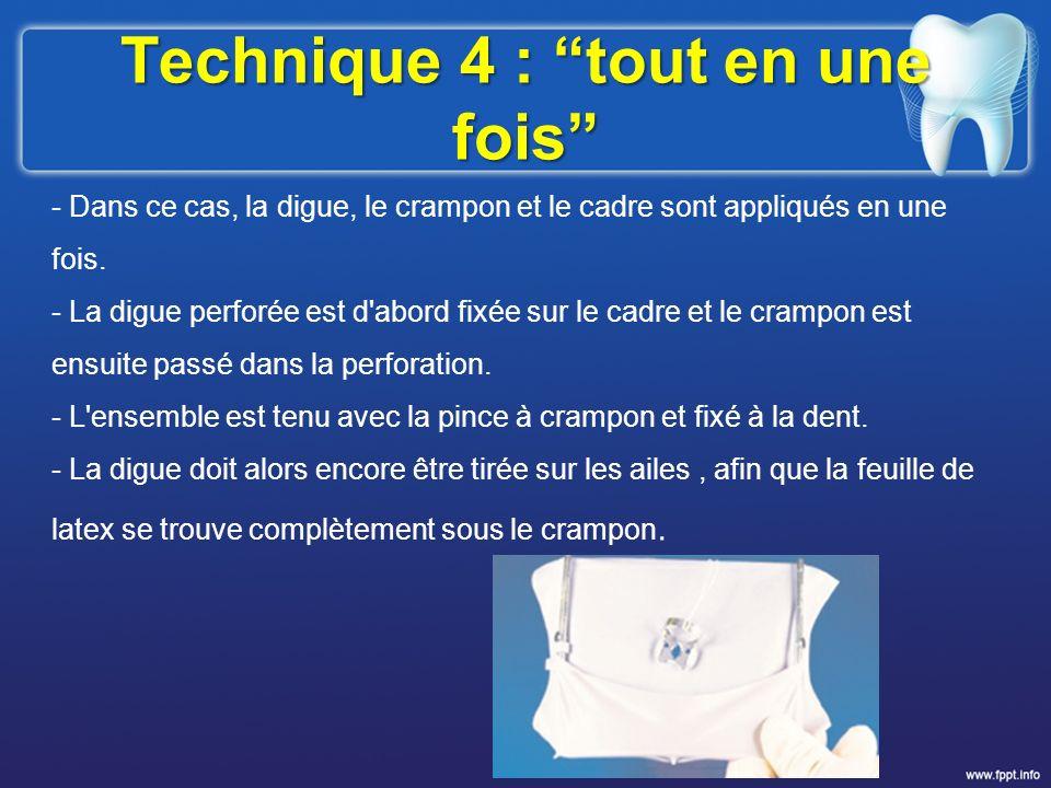 Technique 4 : tout en une fois - Dans ce cas, la digue, le crampon et le cadre sont appliqués en une fois. - La digue perforée est d'abord fixée sur l