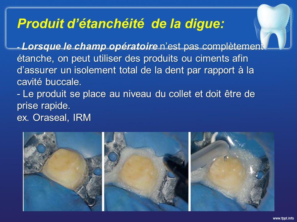 Produit détanchéité de la digue: Lorsque le champ opératoire nest pas complètement étanche, on peut utiliser des produits ou ciments afin dassurer un