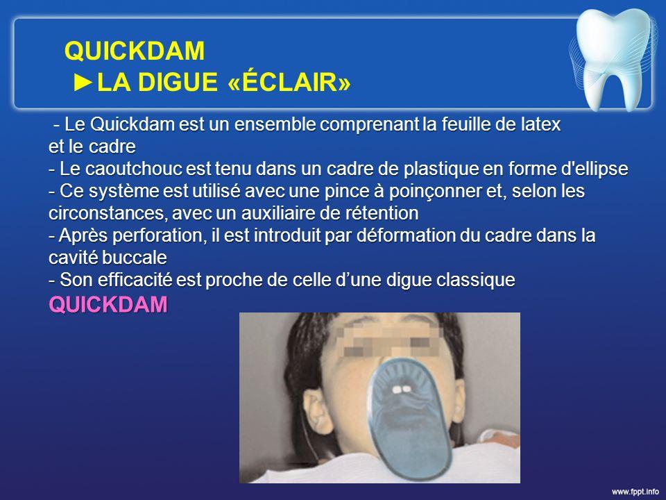 Le Quickdam est un ensemble comprenant la feuille de latex - Le Quickdam est un ensemble comprenant la feuille de latex et le cadre - Le caoutchouc es