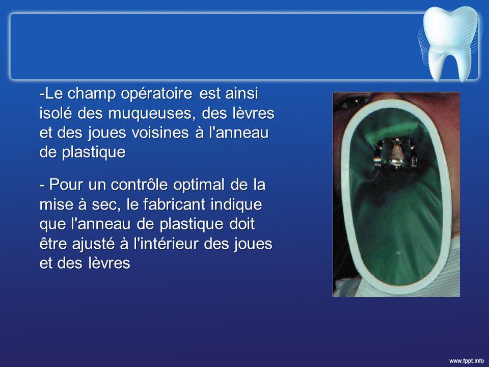 -Le champ opératoire est ainsi isolé des muqueuses, des lèvres et des joues voisines à l'anneau de plastique - Pour un contrôle optimal de la mise à s