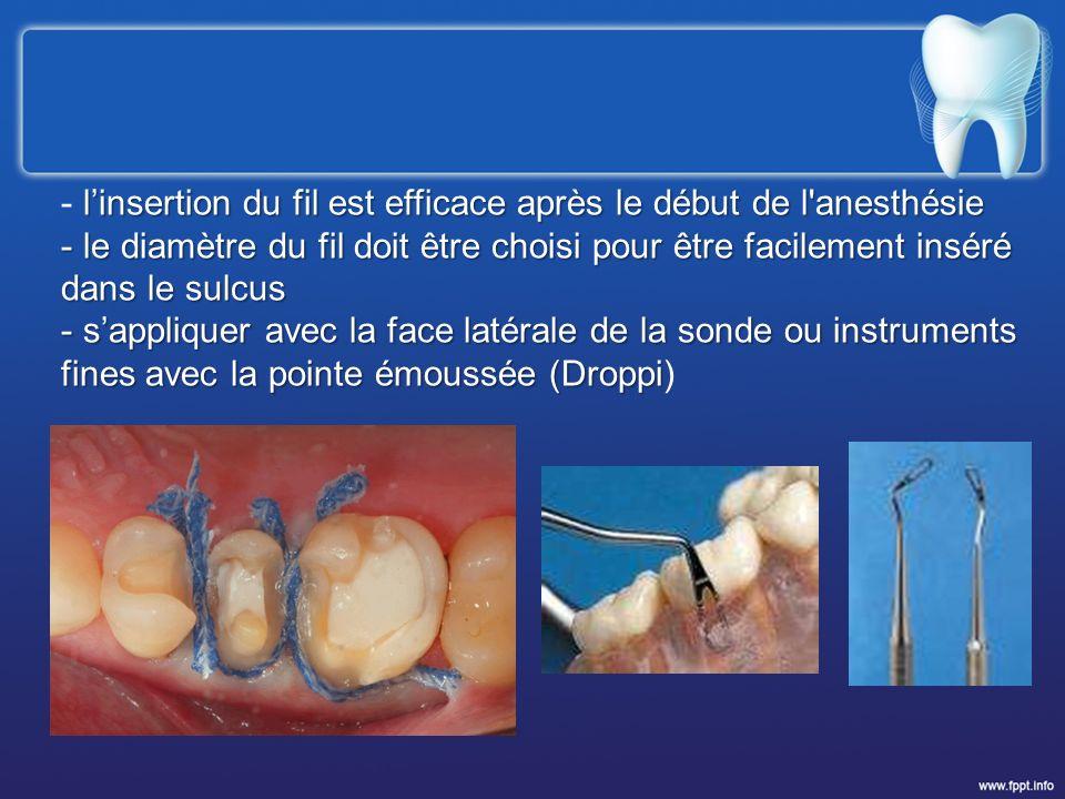 linsertion du fil est efficace après le début de l'anesthésie - linsertion du fil est efficace après le début de l'anesthésie - le diamètre du fil doi