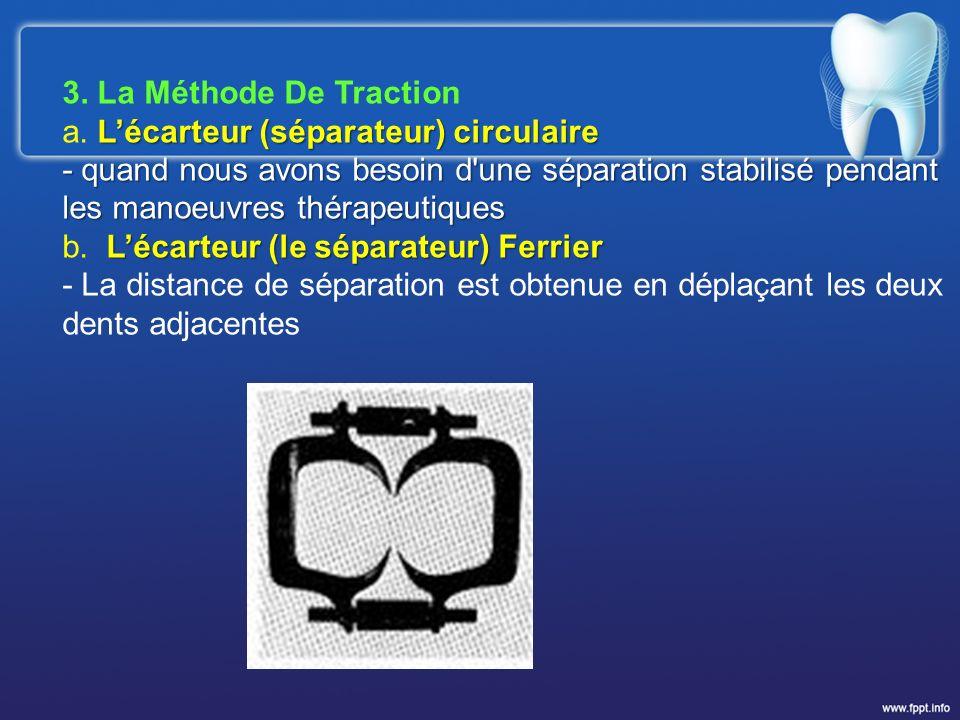 3. La Méthode De Traction Lécarteur (séparateur) circulaire a. Lécarteur (séparateur) circulaire - quand nous avons besoin d'une séparation stabilisé
