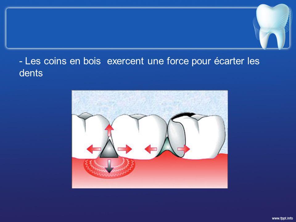 - Les coins en bois exercent une force pour écarter les dents
