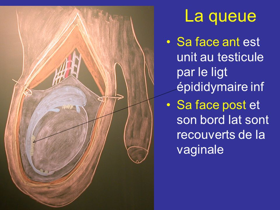 Vue médiale Sa face médiale répond aux vx du cordon spermatique Vue antérieure