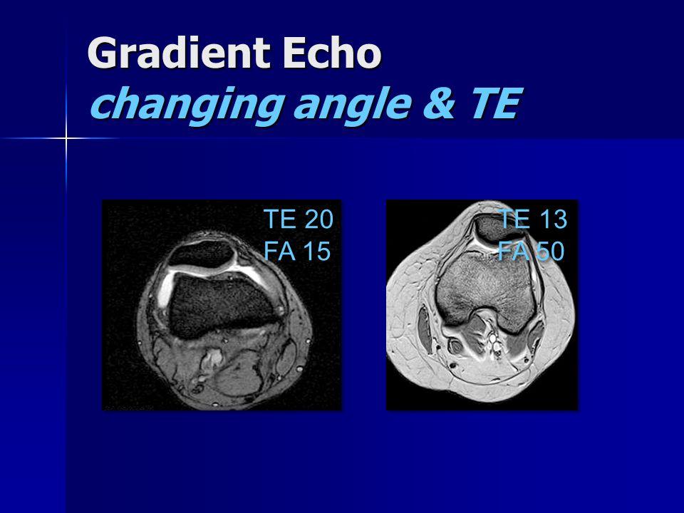 Gradient Echo changing angle & TE TE 20 FA 15 TE 20 FA 15 TE 13 FA 50 TE 13 FA 50