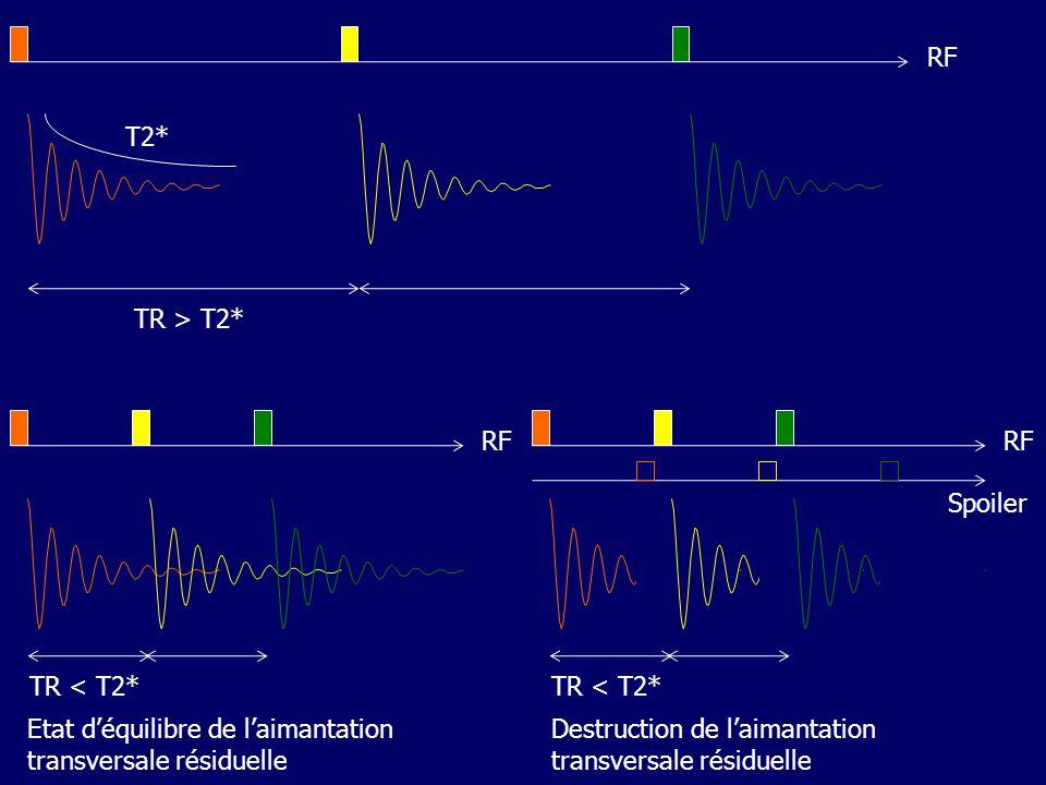TR > T2* T2* RF TR < T2* RF Etat déquilibre de laimantation transversale résiduelle TR < T2* RF Destruction de laimantation transversale résiduelle Spoiler