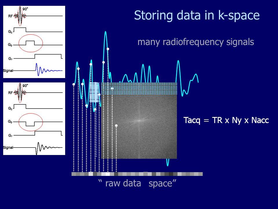 Read TR/line Phase Temps pour remplir la totalité du plan de Fourier = N x TR / n N : Nombre de lignes de Phase n : nombre déléments dantenne Kx Ky Remplissage du plan de Fourier