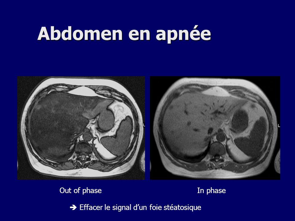 Abdomen en apnée In phaseOut of phase Effacer le signal dun foie stéatosique