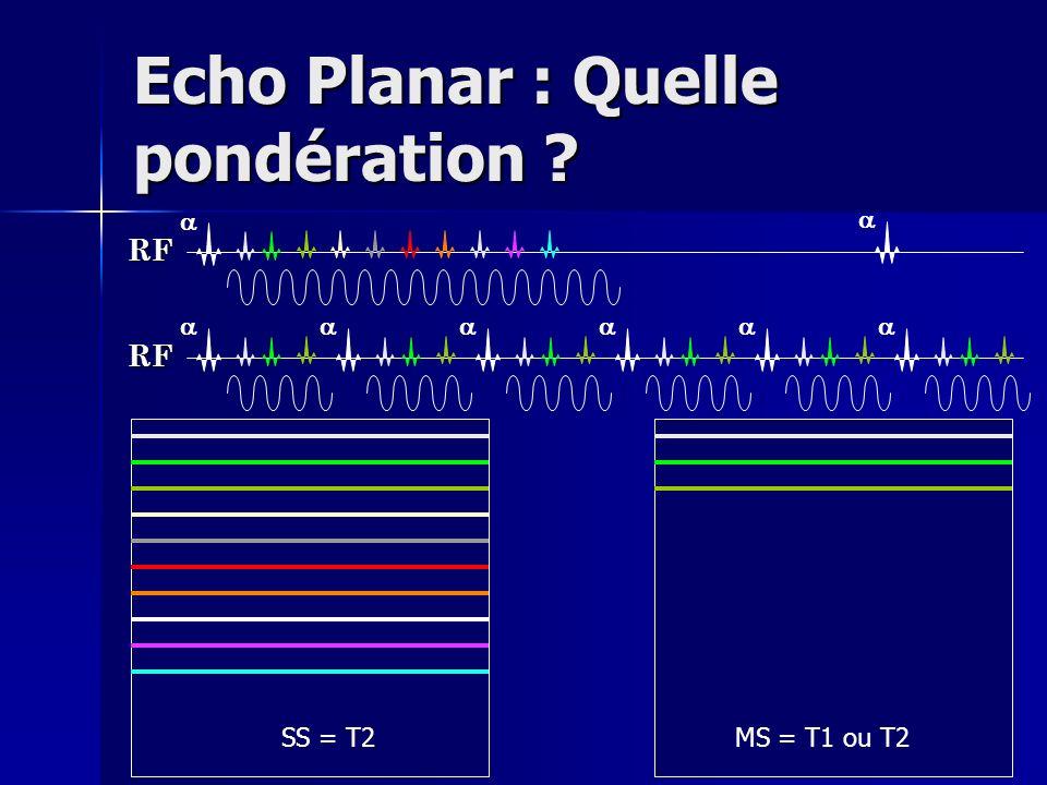 Echo Planar : Quelle pondération ? RF RF SS = T2MS = T1 ou T2