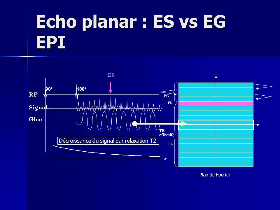 Echo planar : ES vs EG EPI 90° 180° RF Signal Décroissance du signal par relaxation T2 Glec Plan de Fourier TE effectif EG ES