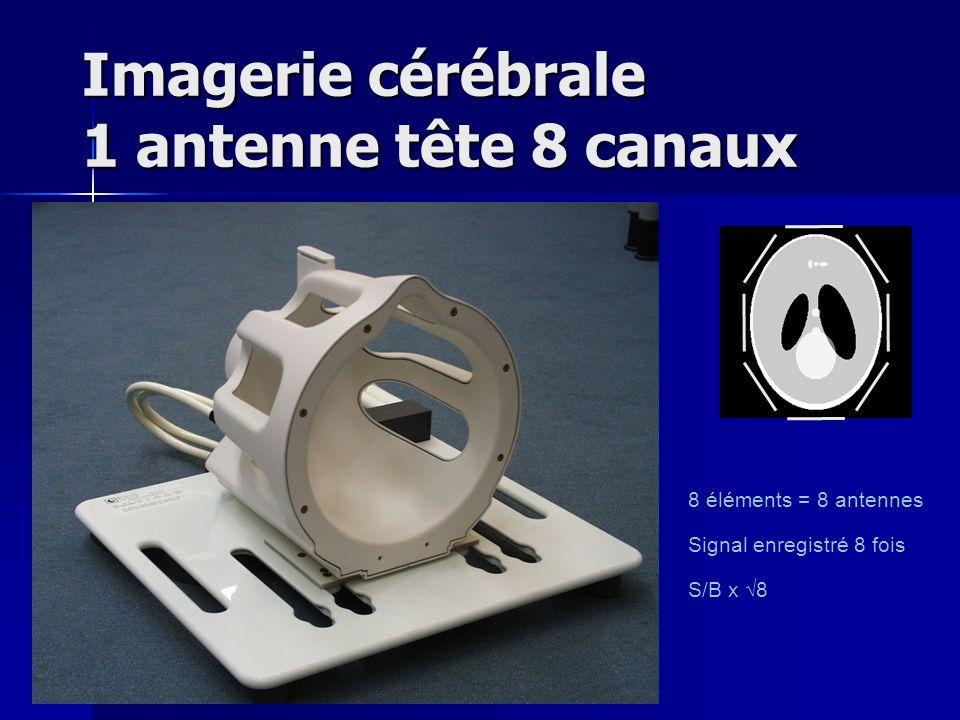 Imagerie cérébrale 1 antenne tête 8 canaux 8 éléments = 8 antennes Signal enregistré 8 fois S/B x 8